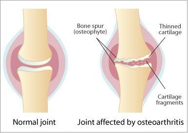 Osteoarthritis Services Quakertown, PA