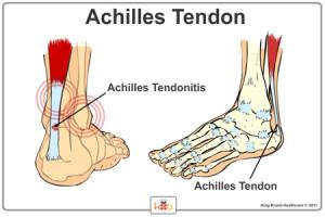 Achilles-Tendonitis-Quakertown-PA