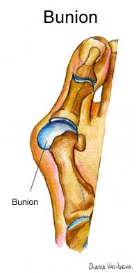 Bunion-Doctor-Quakertown-PA
