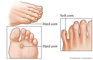 Foot-Corn-Quakertown-PA