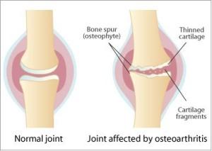 osteoarthritis-Quakertown-PA