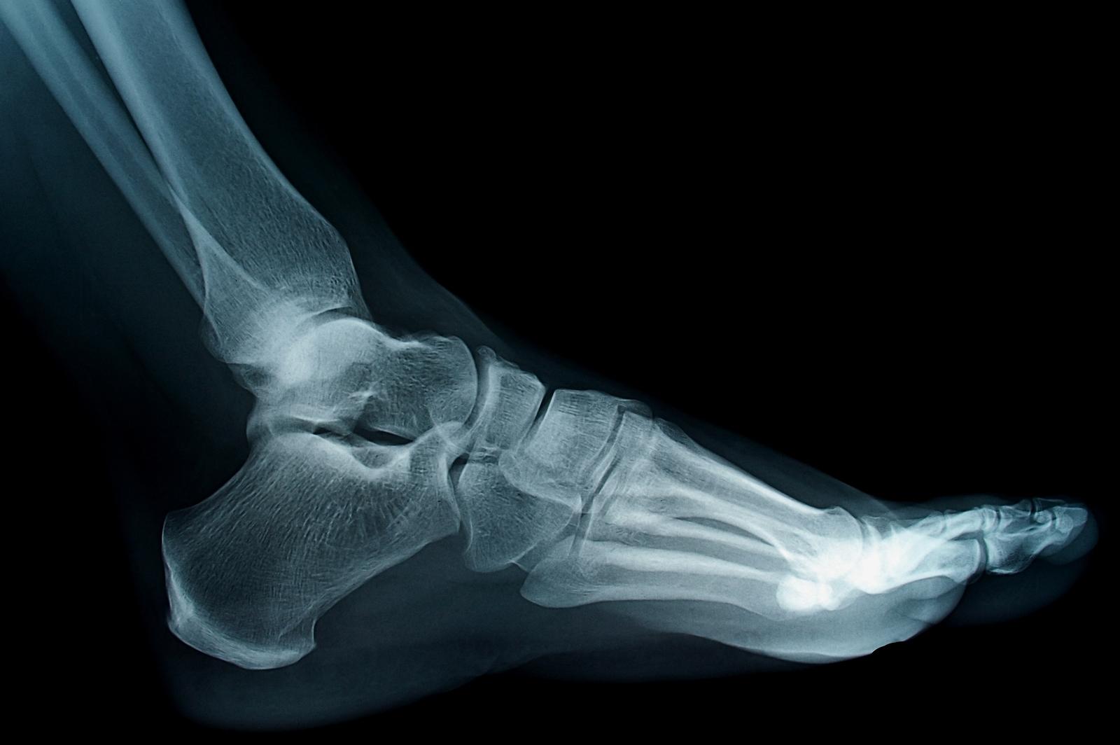 Foot Doctor Souderton, PA